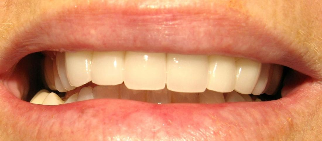 Metal-Free Crowns, Porcelain Veneers