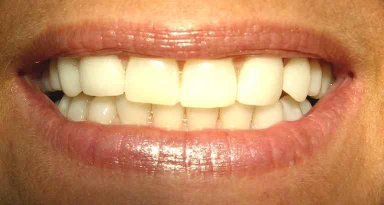 In-Office-Teeth-Whitening-Porcelain-Veneers-After-Image