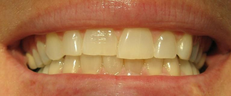 Teeth-Whitening-Porcelain-Veneers-Before-Image