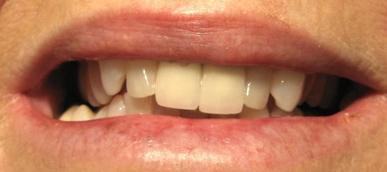 Metal-Free-Crowns-Porcelain-Veneers-Before-Image