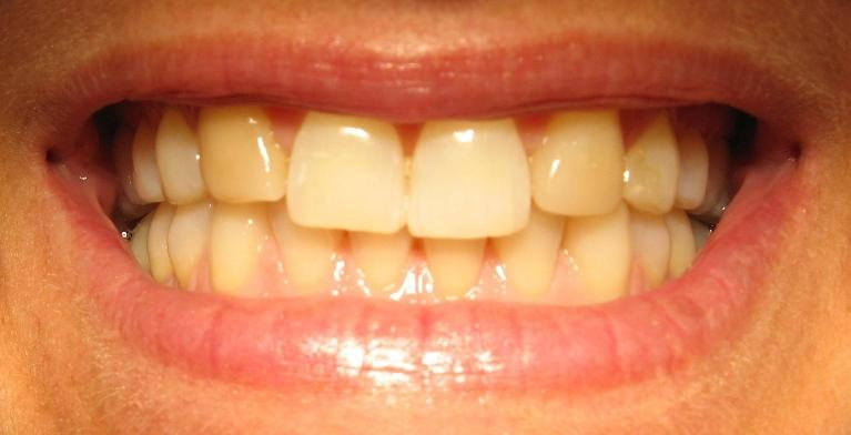 In-Office-Teeth-Whitening-Porcelain-Veneers-Before-Image